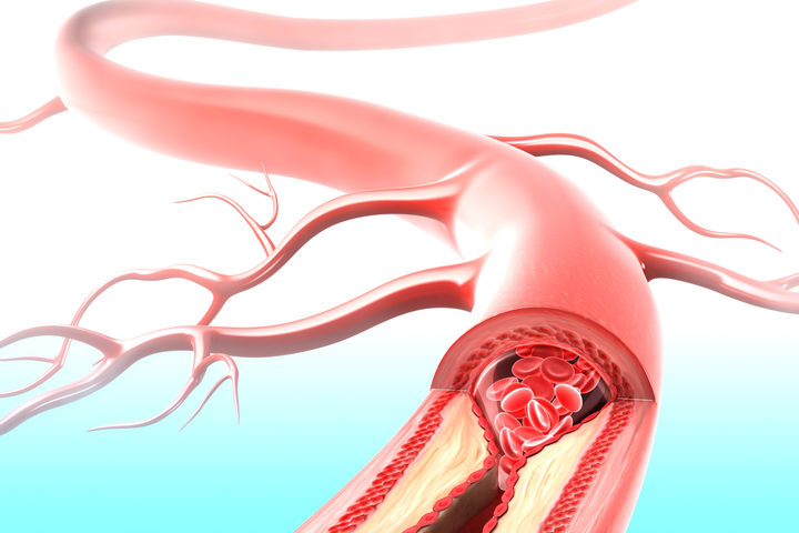 Iniezione di staminali per riparare i danni dell'ictus
