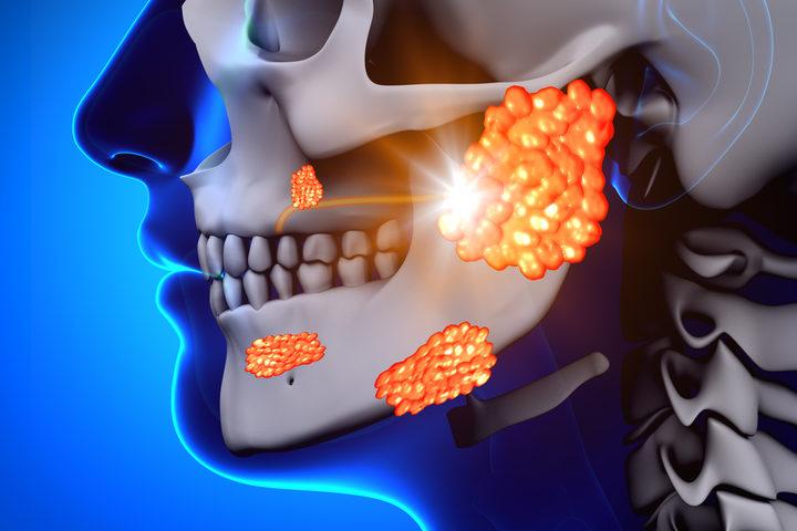 cosa aspettarsi dalla radioterapia TrueBeam per il cancro alla prostata