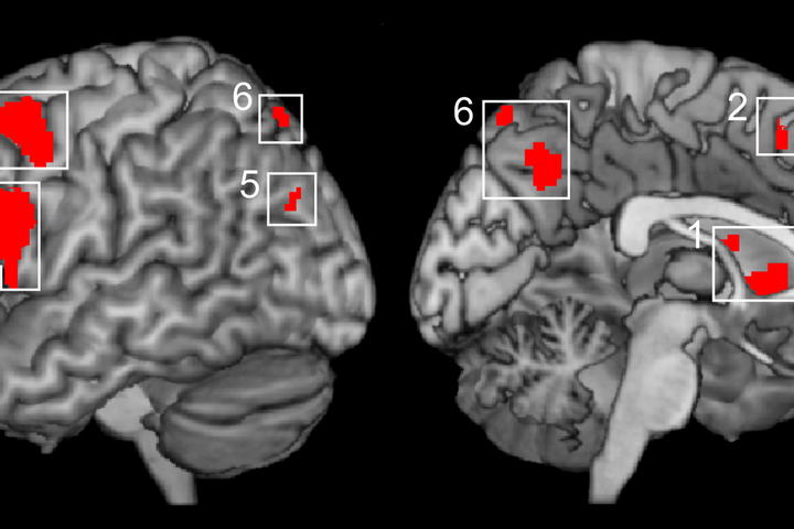 Risonanza magnetica funzionale (fMRI)