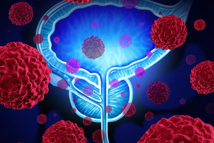 Tumore della prostata