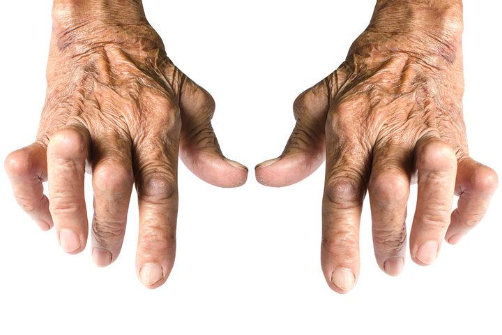 Dolore articolare: molte articolazioni