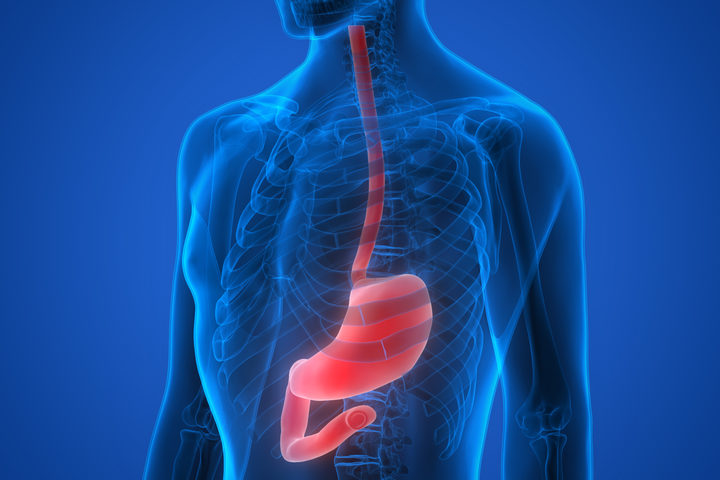 Tumore dell'esofago