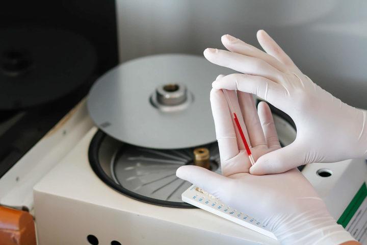 Trapianto di midollo: incompatibilità risolta grazie a gene suicida