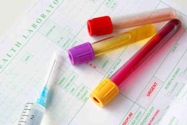 Quali sono le cause del sangue nelle urine?
