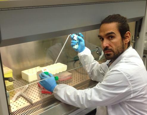 Alla ricerca di cellule staminali tumorali nei carcinomi orali