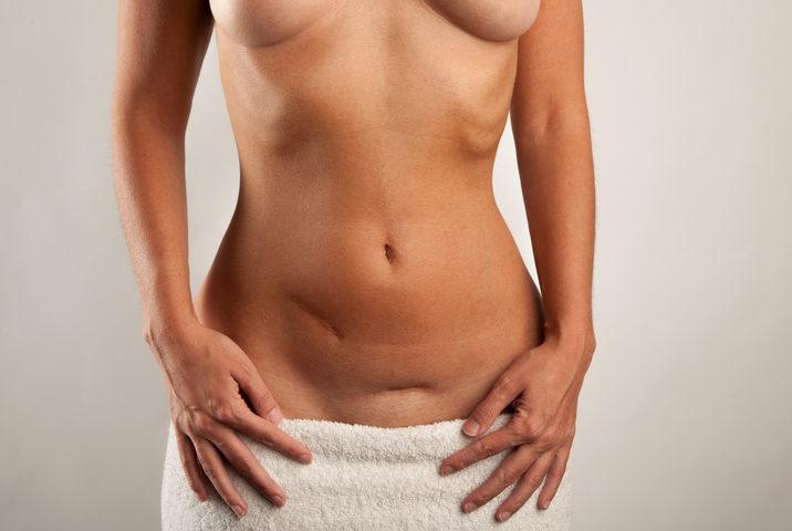 Mutazioni dei geni Brca 1 e 2 e tumore dell'ovaio: cosa occorre sapere