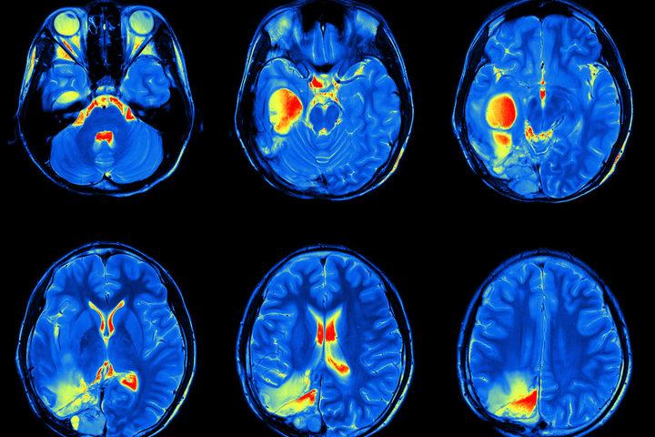 Autismo: scoprirlo quando ancora non dà sintomi