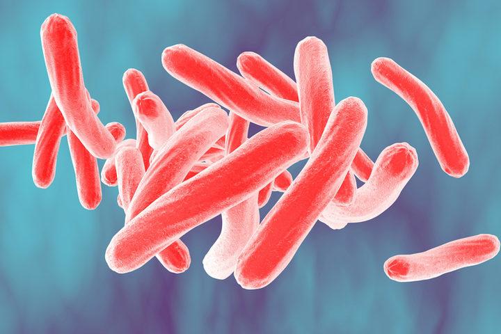 Tubercolosi: a preoccupare sono le co-infezioni con Hiv