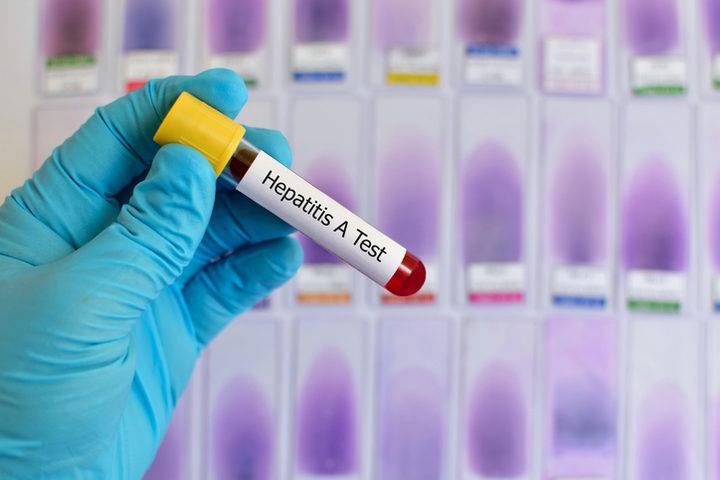 Epatite A: casi in aumento tra gli uomini adulti