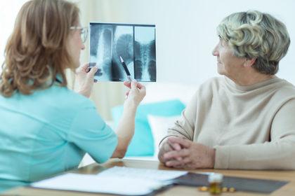 Ossa a rischio per le donne con il tumore al seno in terapia adiuvante