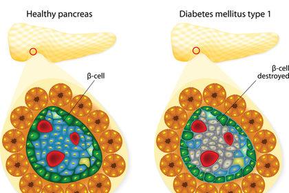A che cosa serve il trapianto delle isole pancreatiche?
