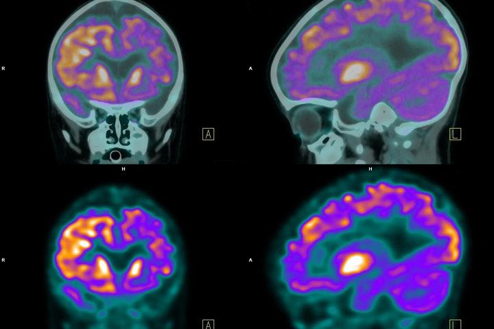 Così l'epilessia diventa cronica