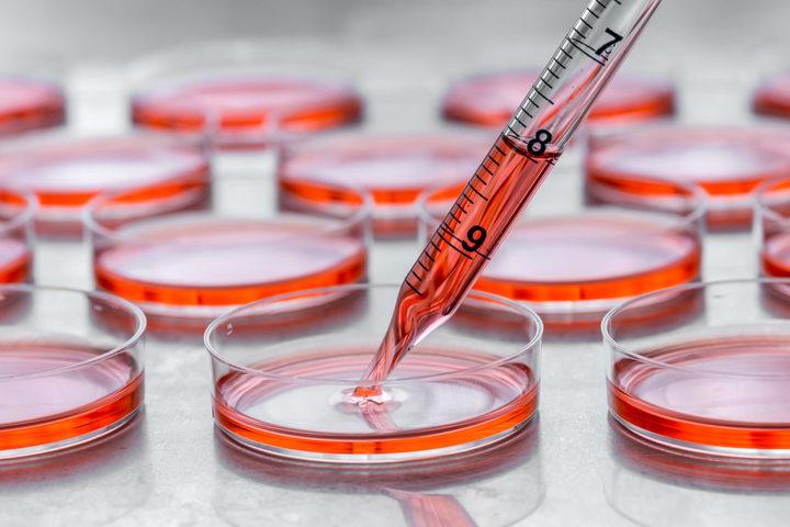 Biopsia liquida: sì per monitorare le cure, no per la diagnosi precoce