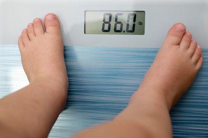 Non esiste una obesità sana