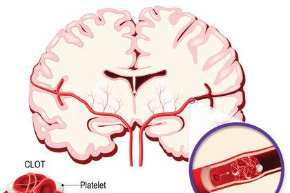 I cinque campanelli d'allarme dell'ictus cerebrale