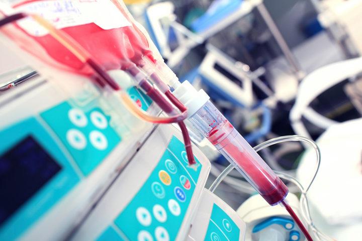 Trapianto d'organi: come variano i tempi di ischemia?