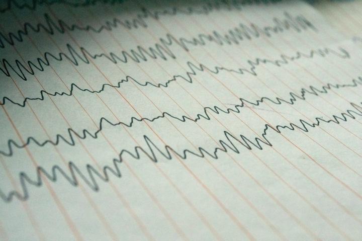 Trapianti d'organo, morte cerebrale e coma: facciamo chiarezza