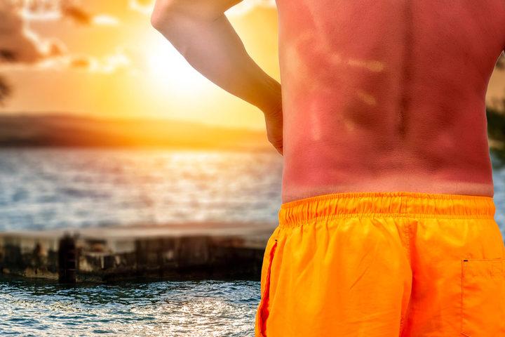 Le scottature solari aumentano il rischio di tumore della pelle?