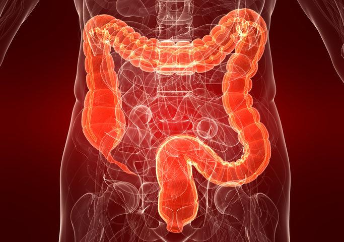 Che cosa sono e come si rimuovono i polipi intestinali?