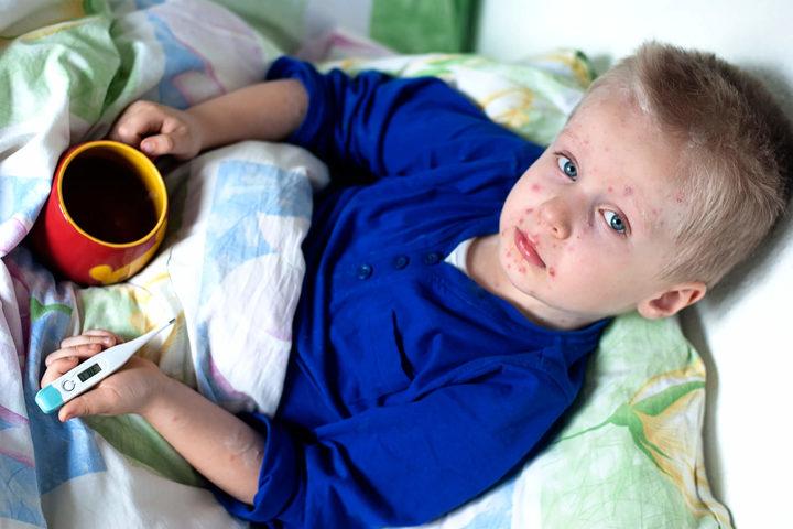 Perché si può prendere il morbillo anche da vaccinati?
