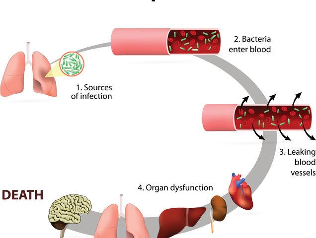 miglior antibiotico per la prostatite da e coli