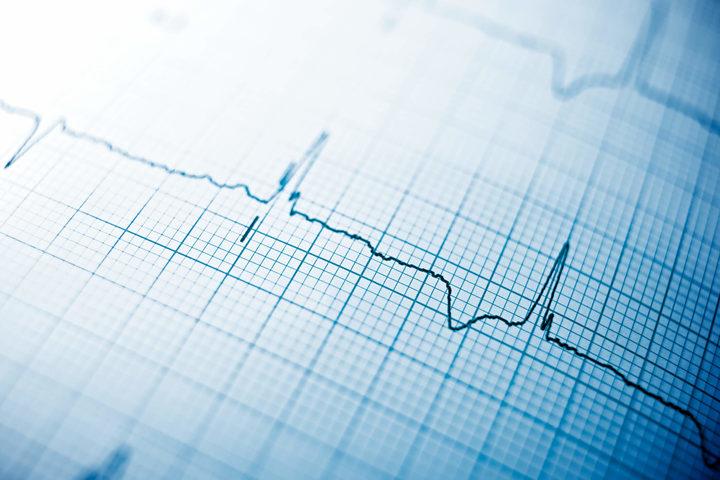Elettrocardiogramma: vi si «legge» anche la depressione?
