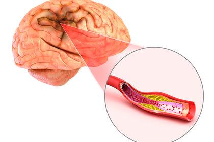 Ictus cerebrale: preoccupa l'aumento dei casi tra i giovani