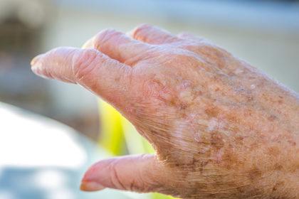 Perché la cheratosi attinica è considerata pericolosa?