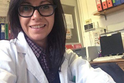 Studio la resistenza alla terapia ormonale nel tumore prostatico