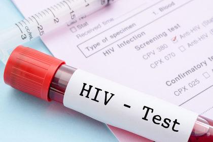 Hiv: contagi in calo, ma preoccupano le infezioni tra i giovani