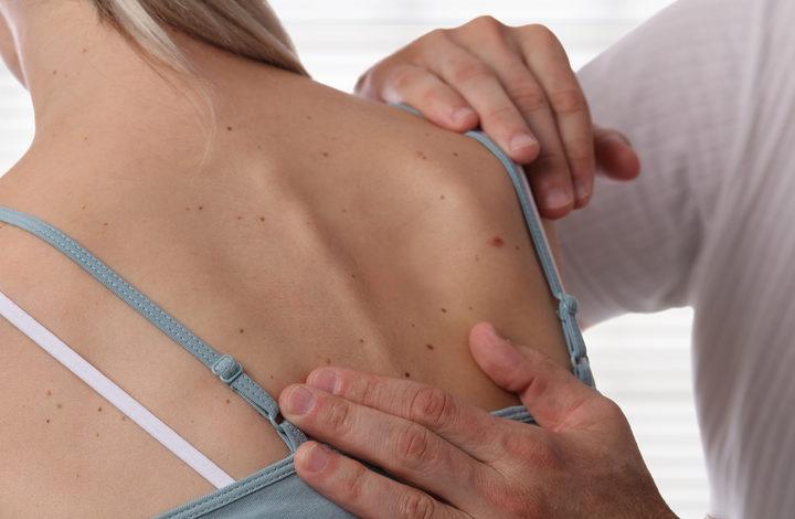 Il melanoma è ulcerato: che conseguenze ha sulla gravità della malattia?