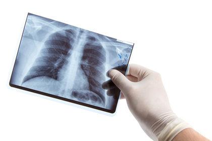 Tumore del polmone: l'Europa accelera verso lo screening