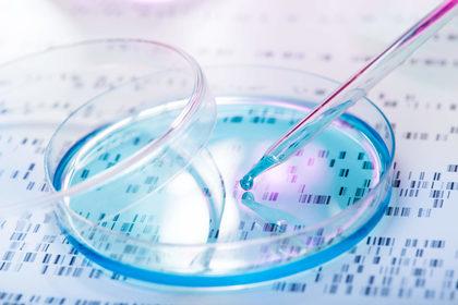 Glioblastoma: combatterlo spegnendo il motore del tumore