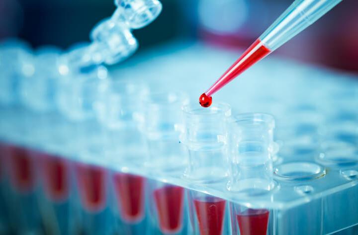 Un esame del sangue non può fare diagnosi precoce di tumore