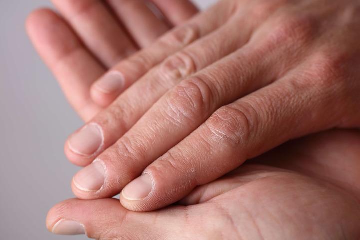 Sclerodermia, nuova opportunità di cura col trapianto di staminali?