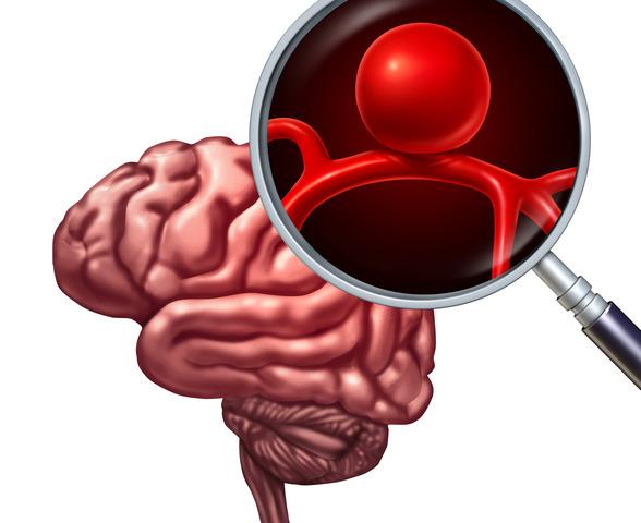 Emorragia cerebrale: come intervenire?