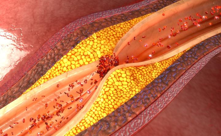 Colesterolo: quando e come controllarlo?
