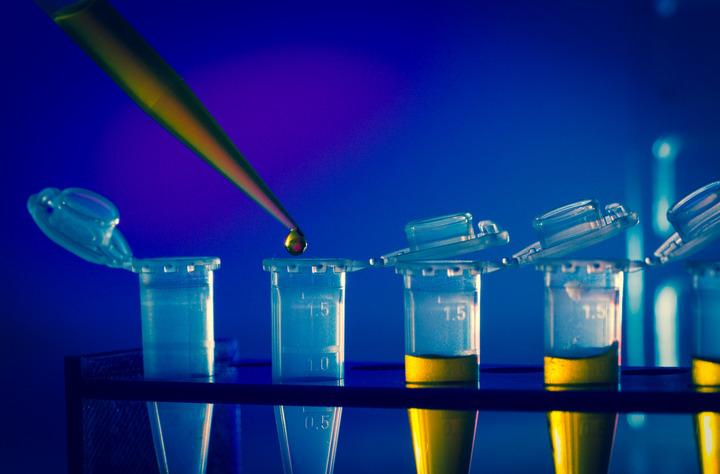 Glioblastoma: un nuovo target per combatterlo con la CAR-T