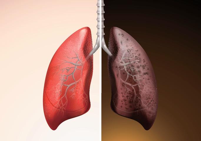 Ecco come come diventano i polmoni di un fumatore