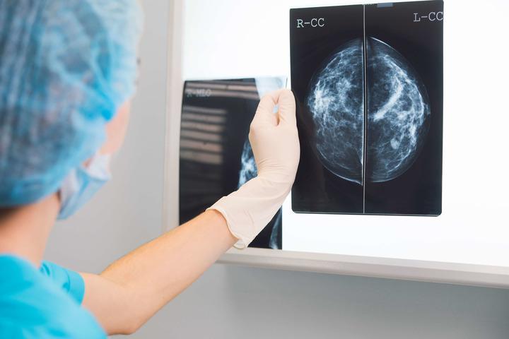 Tumore seno: un test genetico per capire quando la chemioterapia non serve