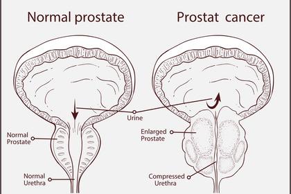 Come curare l'ipertrofia prostatica benigna?