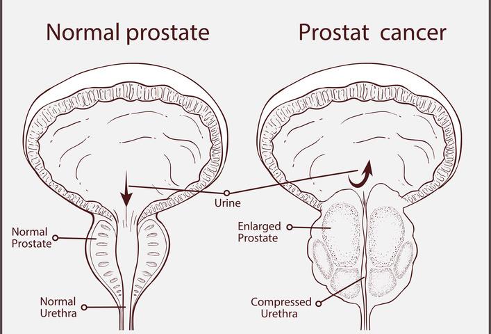 Ipertrofia prostatica benigna: come comportarsi?