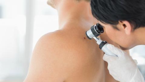 Non è il numero dei nei a misurare il rischio di melanoma