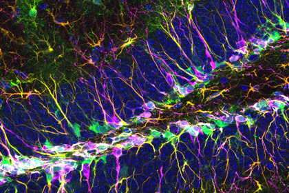 Scoperto il gene che «guida» le staminali nel cervello