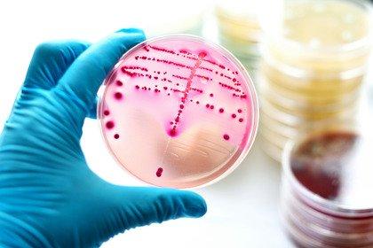 Sifilide in aumento: allo studio un vaccino per arginarla