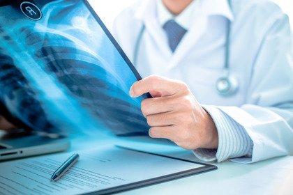 Tumore del polmone: nuovi farmaci e diagnosi precoce