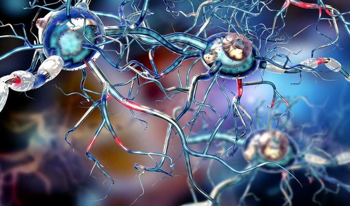 Sclerosi multipla: per le forme più gravi arriva Ocrelizumab