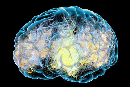 Alzheimer: la dopamina è una delle possibili cause