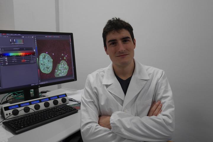 Studio per comprendere le cause della leucemia linfoblastica acuta B