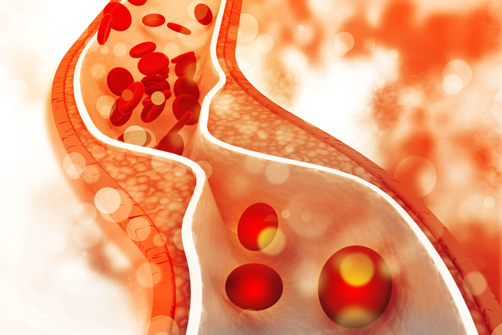 Trombosi: un rischio ancora poco noto per i malati di tumore